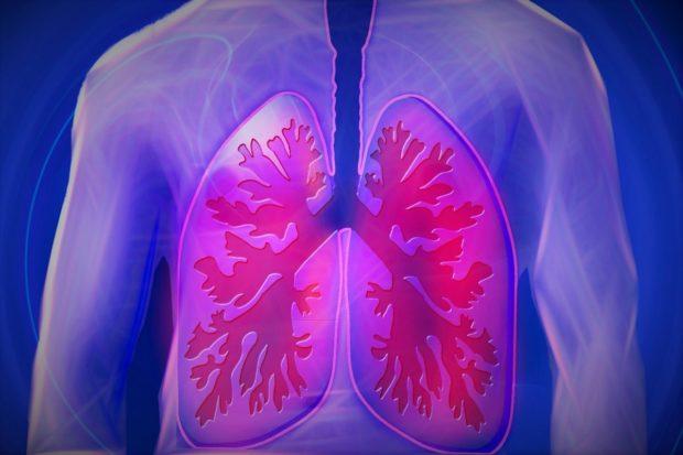 Včasná diagnóza plicní hypertenze je v boji s nemocí klíčová